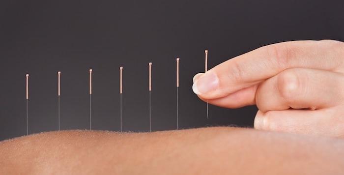 L'acupuncture pour accompagner le patient en phase terminale
